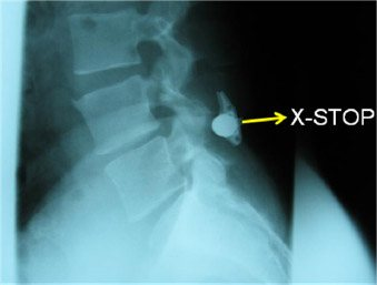 Surgical Options for Lumbar Stenosis